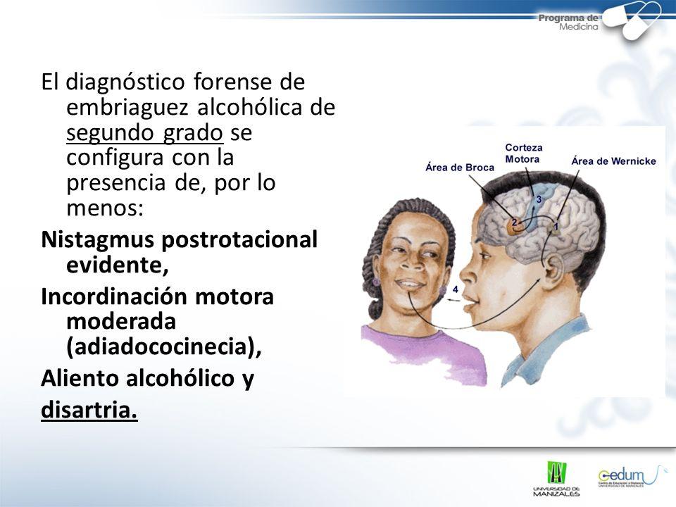 El diagnóstico forense de embriaguez alcohólica de segundo grado se configura con la presencia de, por lo menos: Nistagmus postrotacional evidente, In