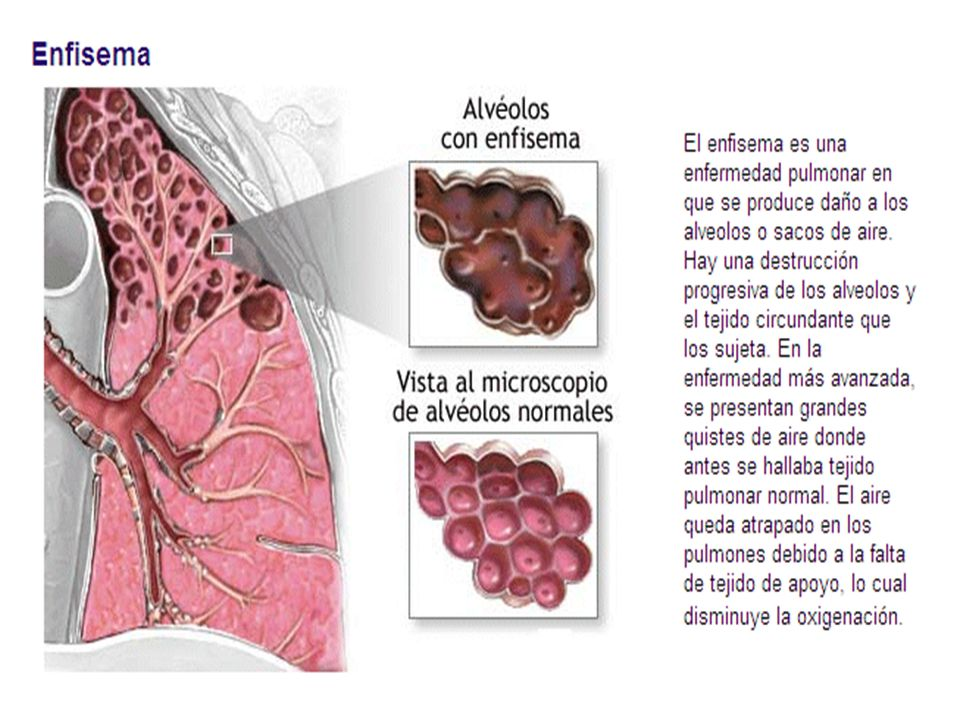 "Enfisema Pulmonar ""Kinesiologia"" - ppt video online descargar"