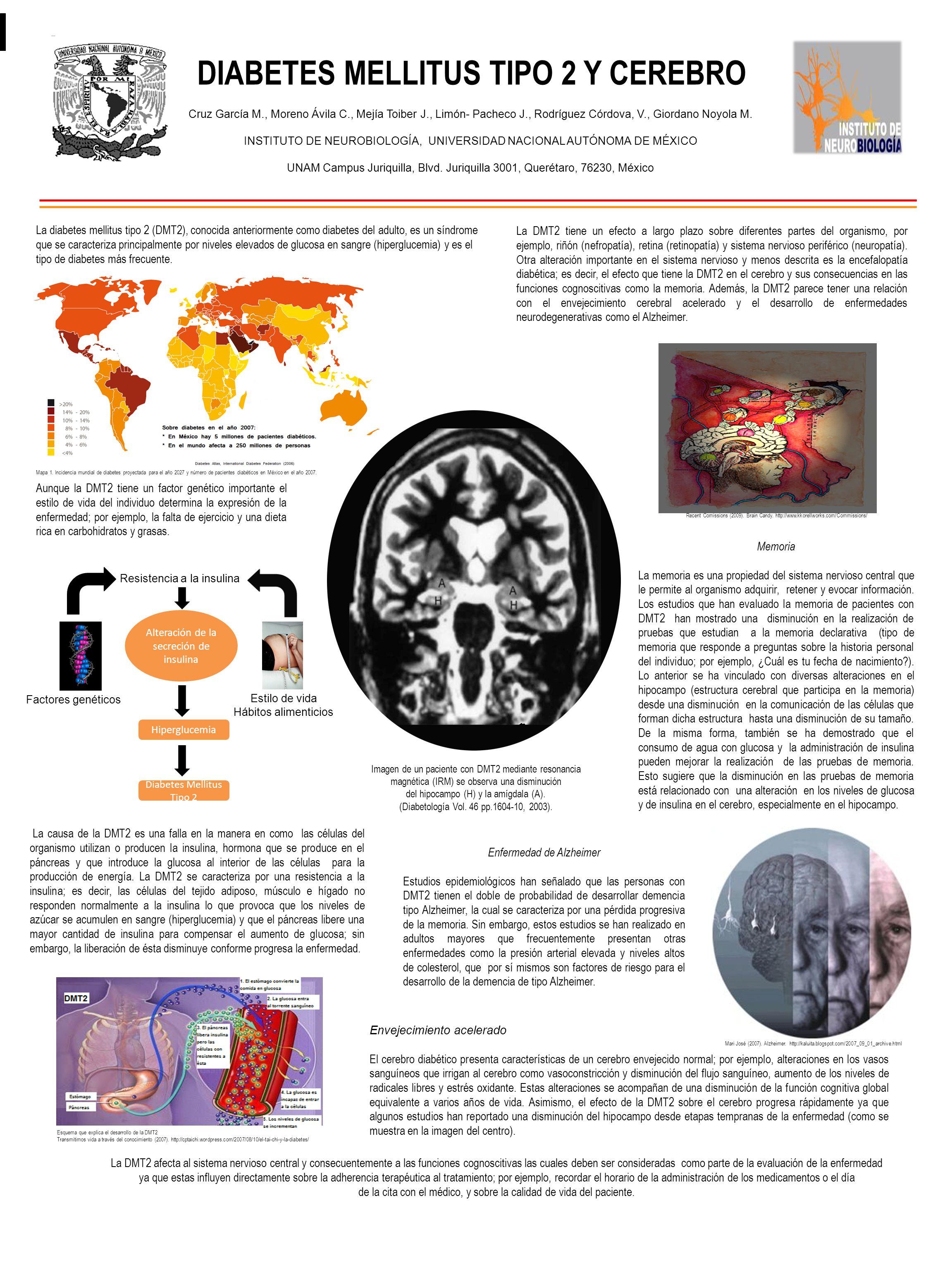 resonancia magnetica cerebral resultados normales de diabetes