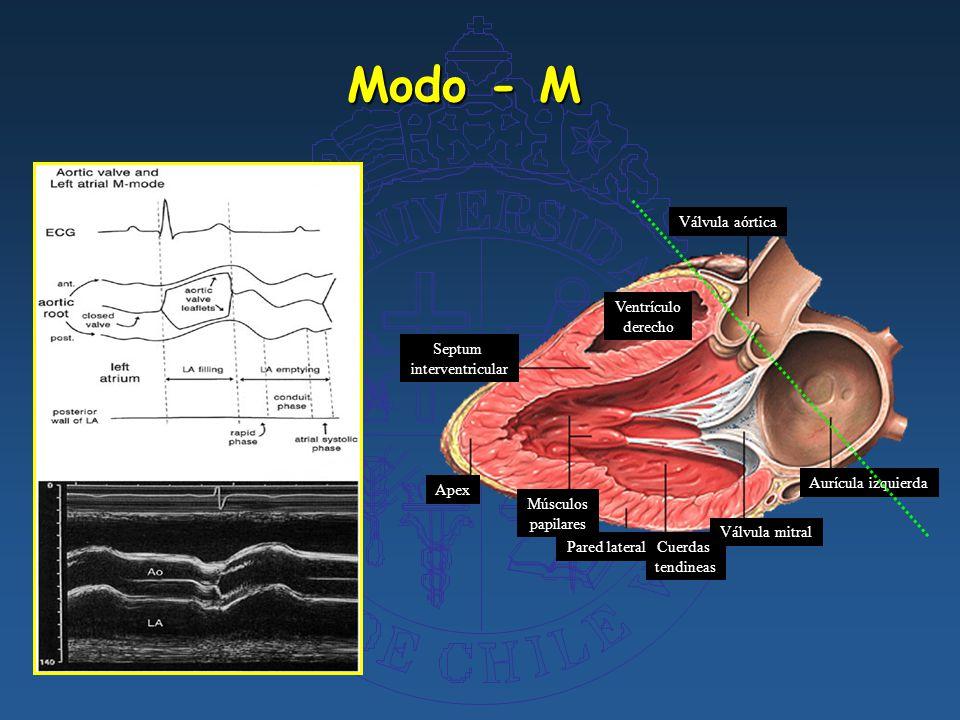 ECOCARDIOGRAFIA. Preguntas ¿ Qué es un ecocardiograma?¿ Qué es un ...