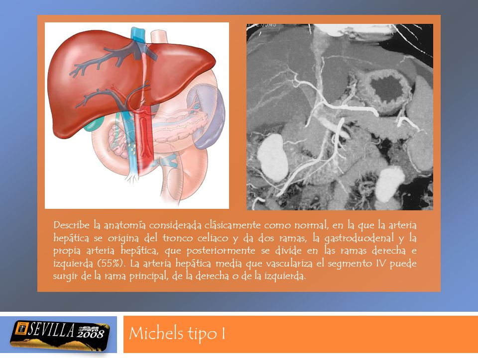 Michels tipo I Describe la anatomía considerada clásicamente como ...