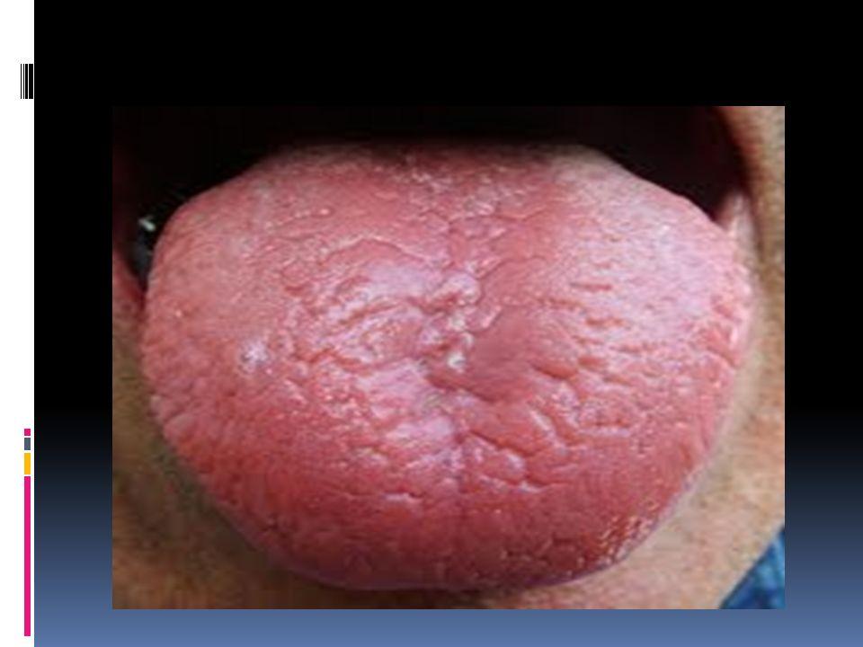 MICROSISTEMAS La observación de la lengua examina básicamente los ...