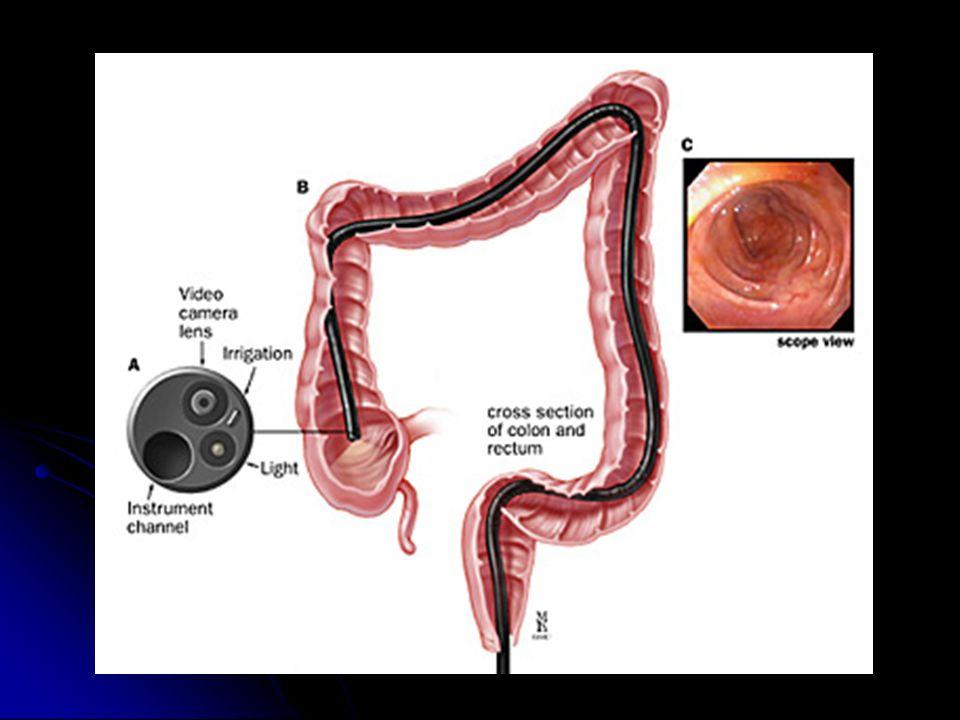 Procedimientos Diagnósticos y Terapéuticos en Gastroenterología ...