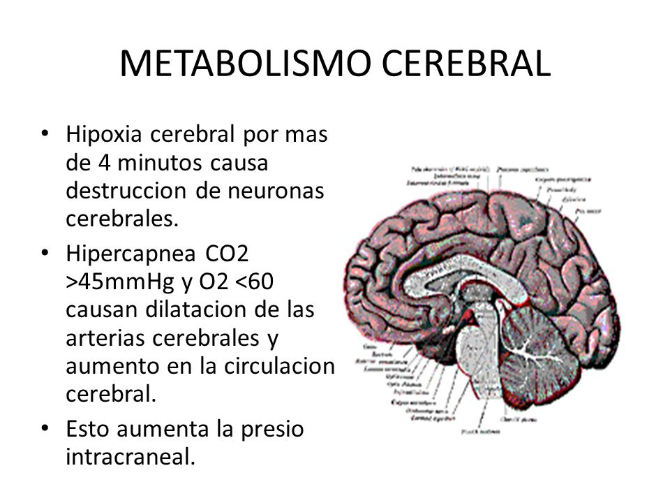 ACCIDENTE CEREBROVASCULAR STROKE L. Méndez PhD. Objetivos Al ...