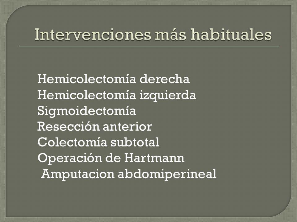Las intervenciones mas habituales de la cirugía del colon están ...