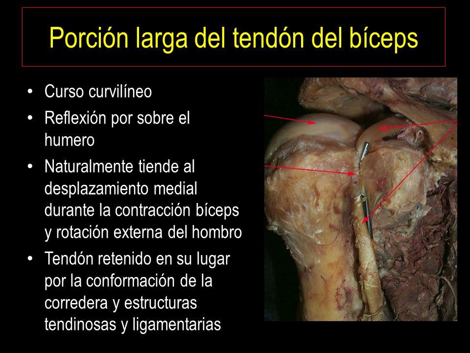 Lesiones de la Porción Larga del Tendón del Bíceps. Dr. Barousse ...