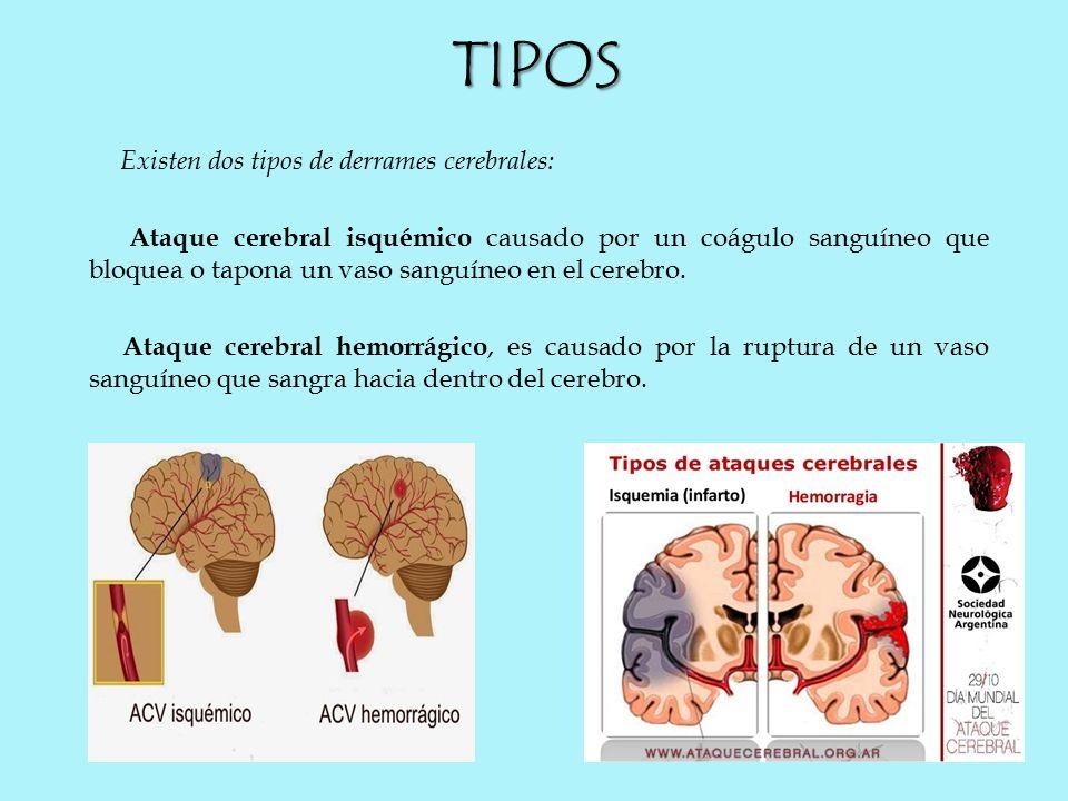 Cerebrovascular accidente dos de tipos
