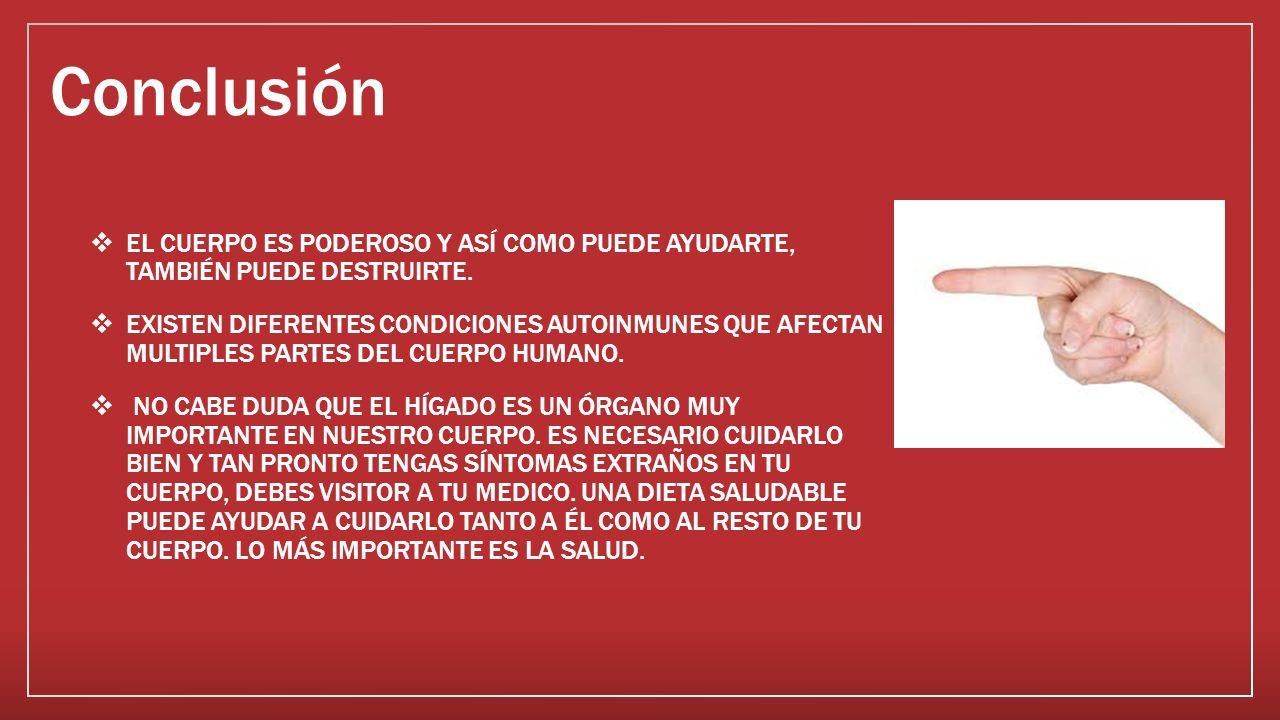 Enfermedades Autoinmunes NIMIABEL CALDERON RODRIGUEZ ADMINISTRACION ...