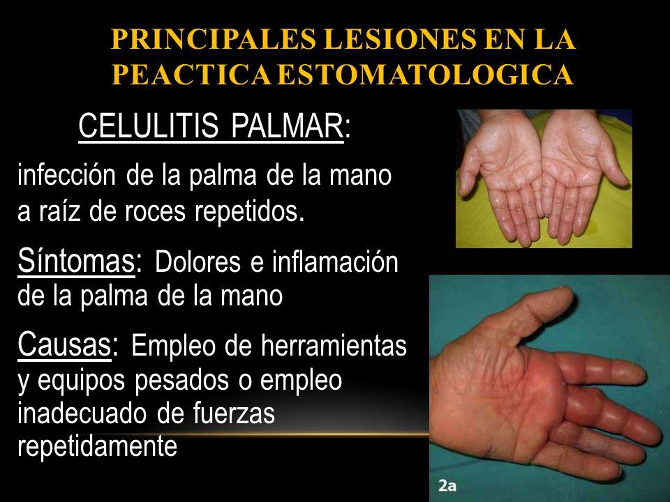 Crema de manos para diabetes