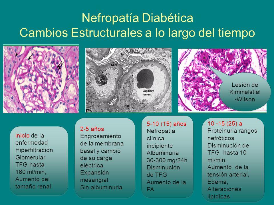 dieta de diabetes de engrosamiento de la membrana basal