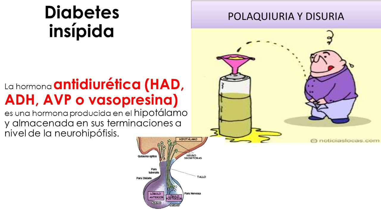 diabetes central insípida ppt antecedentes