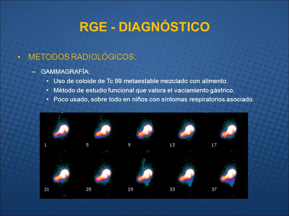 examen gammagrafía de reflujo gastroesofagico