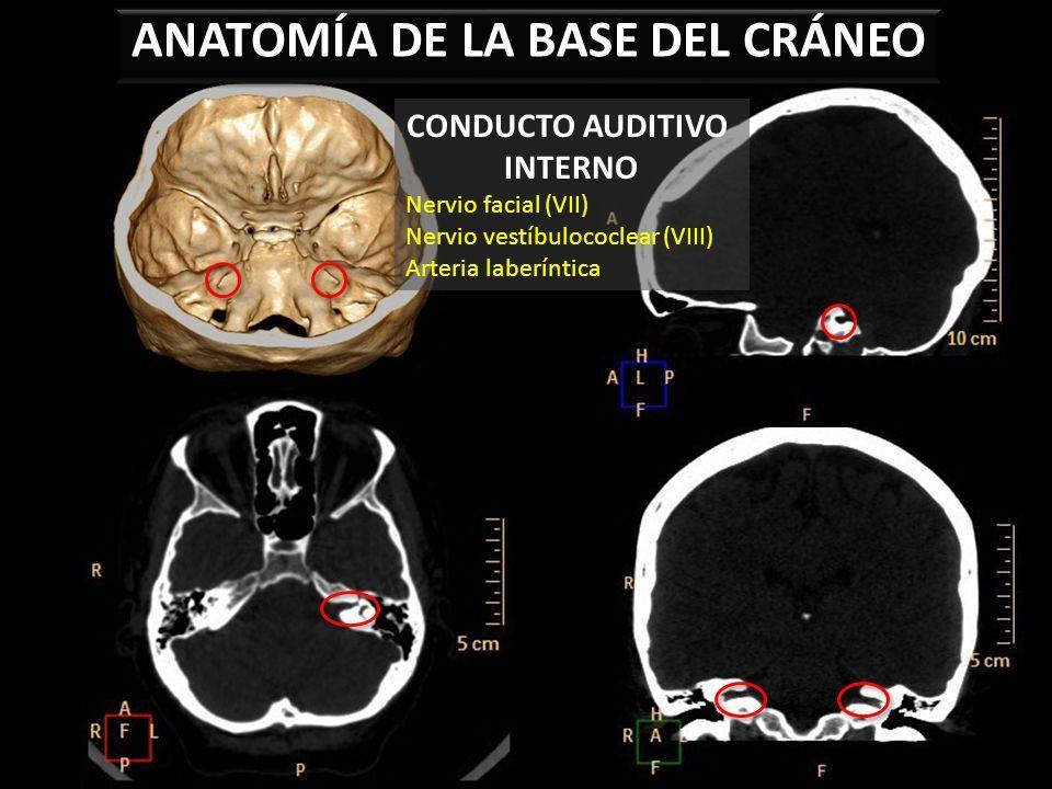 ANATOMÍA DE LA BASE DEL CRÁNEO Frontal Etmoides Maxilar Cigomático ...