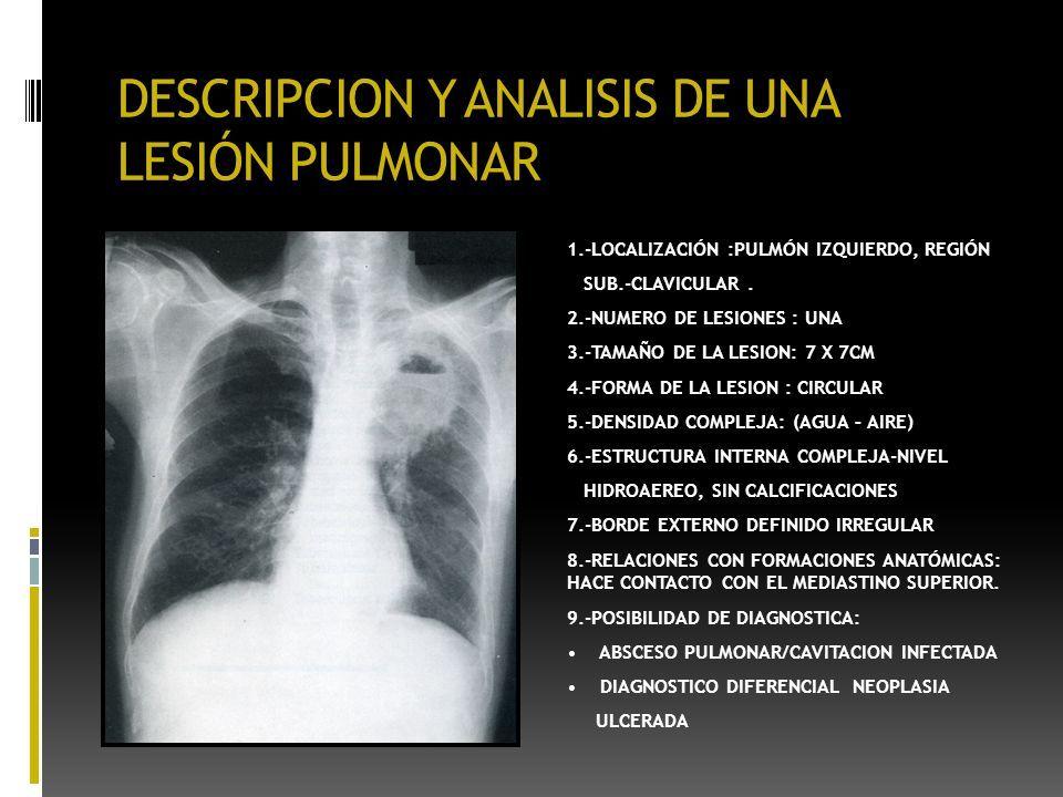 Atractivo Anatomía Segmentaria De Pulmón Adorno - Imágenes de ...