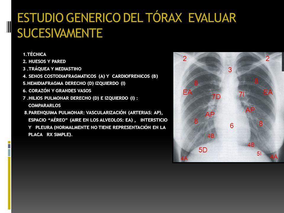RADIOLOGÍA PULMONAR GENERALIDADES Luis A. Campos Calderon Medico ...