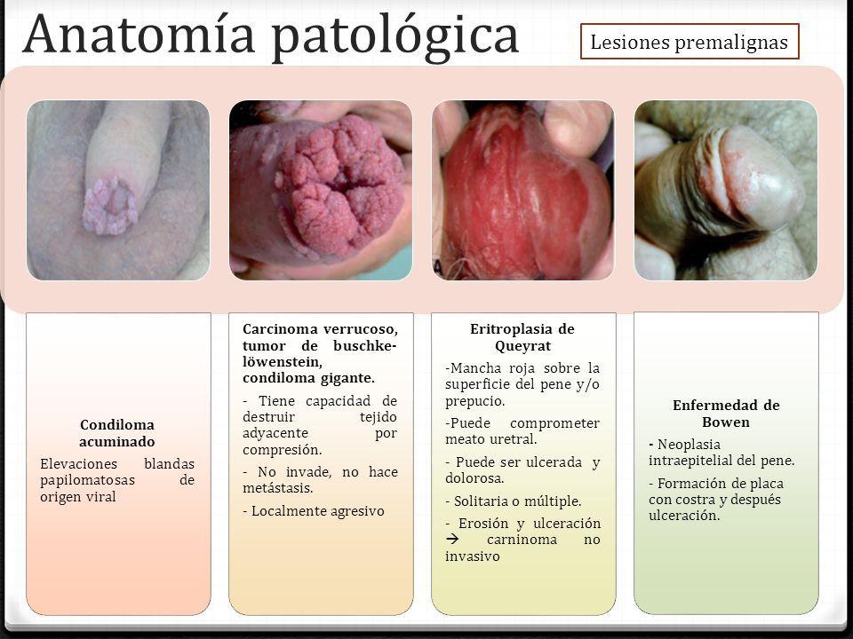 Paulino Solis Flor Liliana. Definición 0 Se define al cáncer de pene ...
