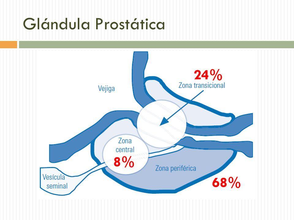 tumores en la glándula prostática