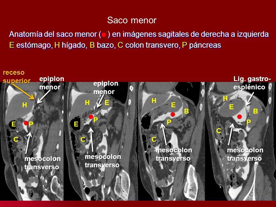 ANATOMÍA DEL PERITONEO Monserrat Gracia Montes. El peritoneo ...