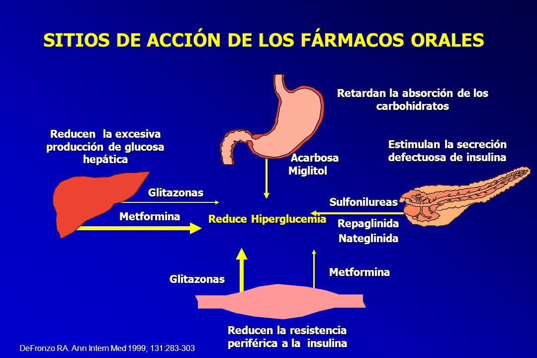 diabetes mellitus tipo 2 slideshare es