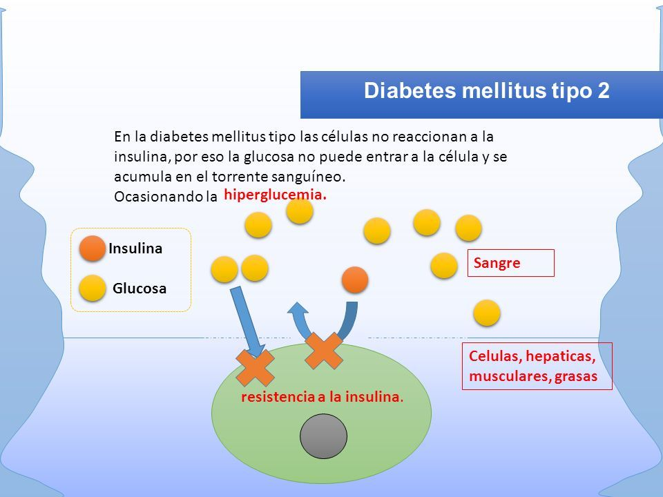 diabetes tipo 2 de células grasas viscerales