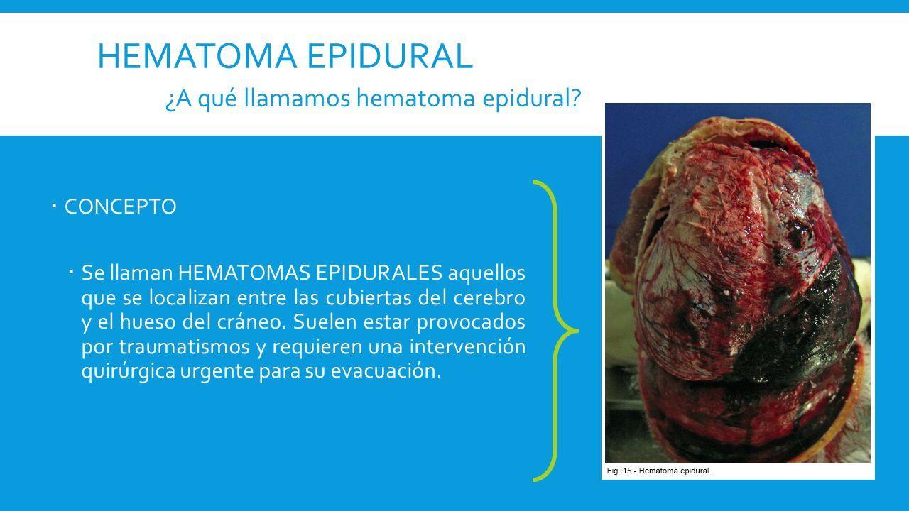hemorragia signos epidurales y sintomas de diabetes